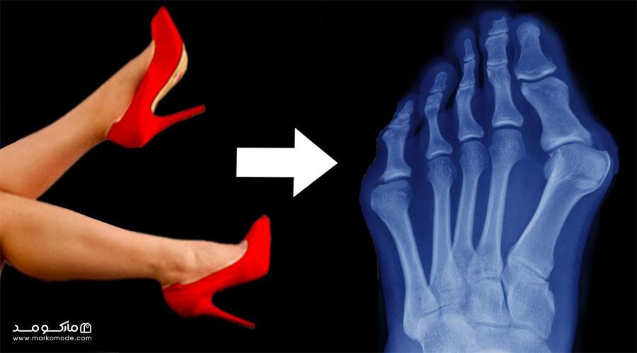 خطرات سلامتی پوشیدن کفش پاشنه بلند