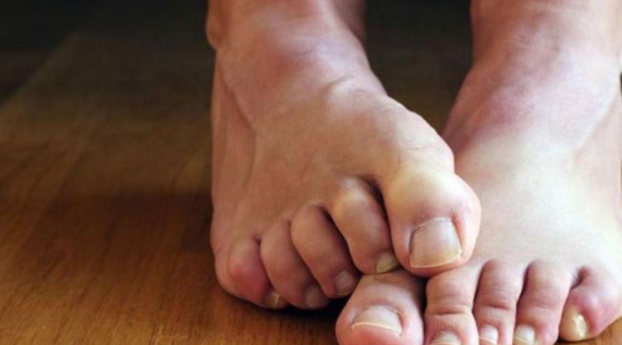 تشخیص پای ورزشکار