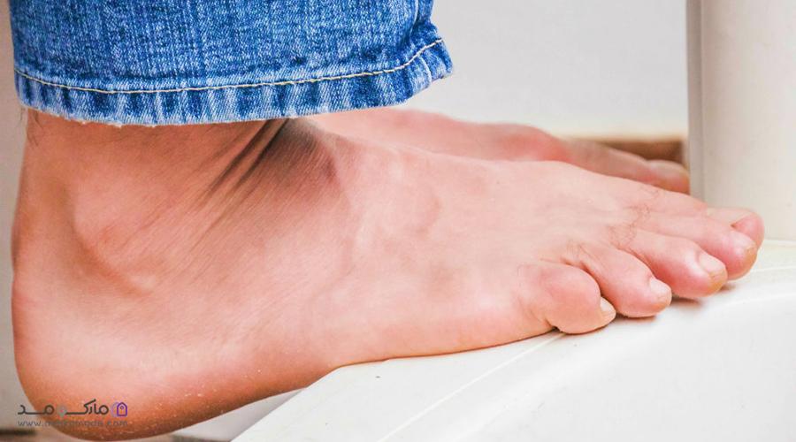 نکات مهم در خرید کفش مناسب برای پای بزرگ