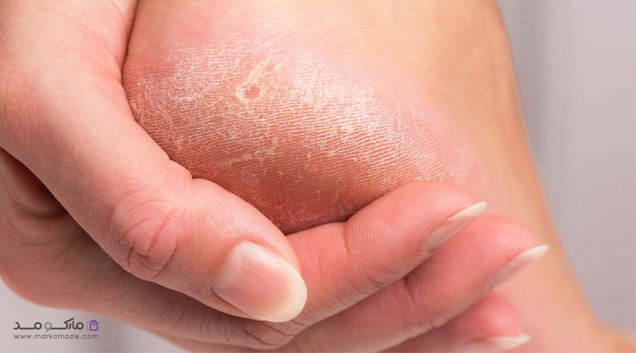 علل و عوامل خطرناک پینه پا